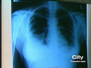 Do Chest X-Rays Increase The Risk Of Breast Cancer?