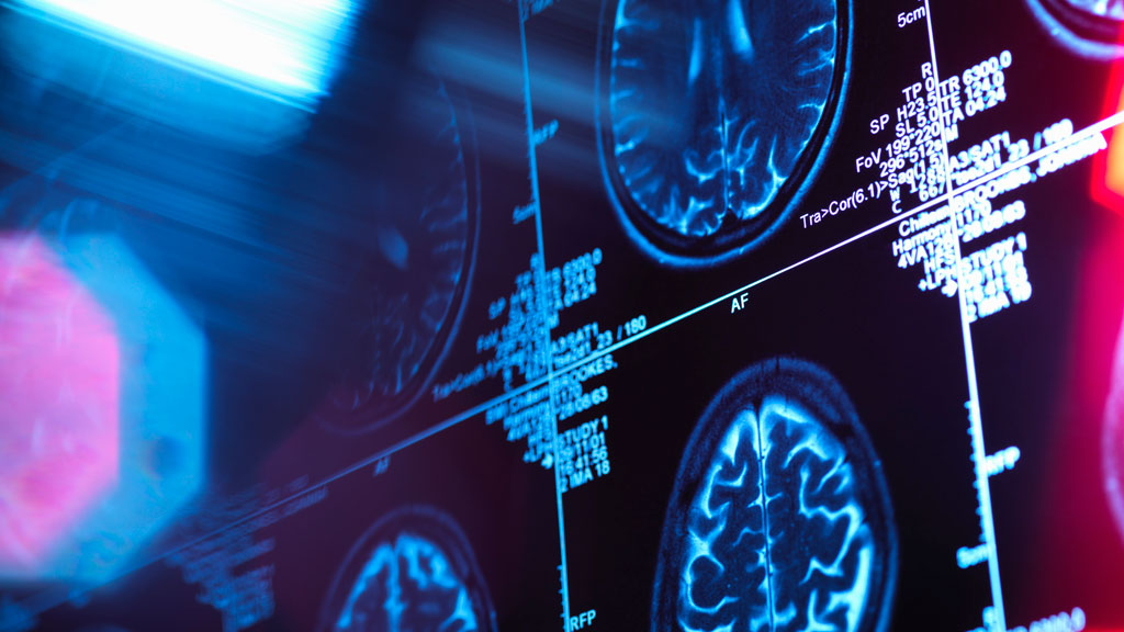 Would you trust an AI program with your medical diagnosis?